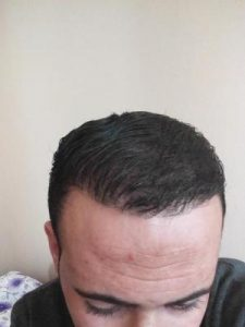 zekeriya-kul-hair-transplant-results (11)