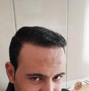 zekeriya-kul-hair-transplant-results (14)