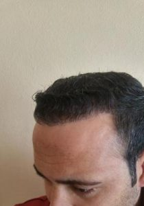 zekeriya-kul-hair-transplant-results (16)