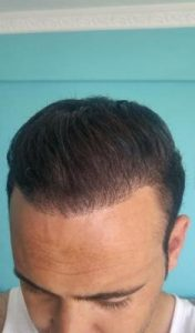 zekeriya-kul-hair-transplant-results (18)