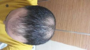 zekeriya-kul-hair-transplant-results (21)