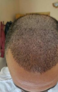 zekeriya-kul-hair-transplant-results (24)