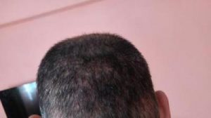 zekeriya-kul-hair-transplant-results (25)