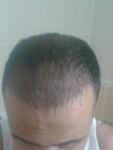 zekeriya-kul-hair-transplant-results (6)