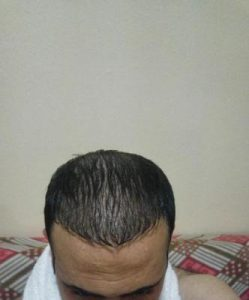 zekeriya-kul-hair-transplant-results (7)