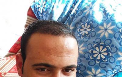 zekeriya-kul-hair-transplant-results (8)
