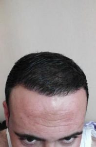 zekeriya-kul-hair-transplant-results (9)