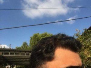 dr-koray-erdogan-hair-transplant (1)