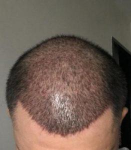 dr-koray-erdogan-hair-transplant (10)