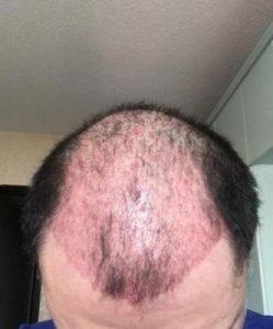 dr-koray-erdogan-hair-transplant (12)