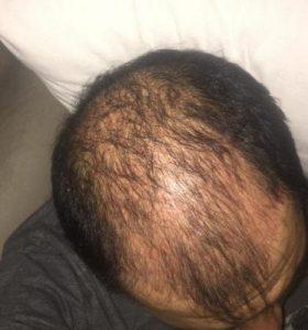 dr-koray-erdogan-hair-transplant (13)