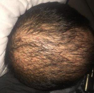 dr-koray-erdogan-hair-transplant (14)