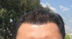 dr-koray-erdogan-hair-transplant (18)