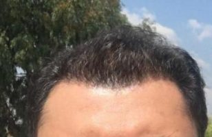 dr-koray-erdogan-hair-transplant (18)