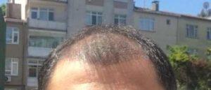 dr-koray-erdogan-hair-transplant (19)