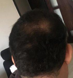 dr-koray-erdogan-hair-transplant (2)