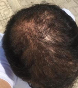 dr-koray-erdogan-hair-transplant (20)