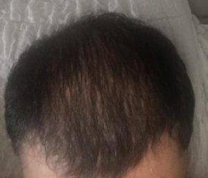 dr-koray-erdogan-hair-transplant (21)