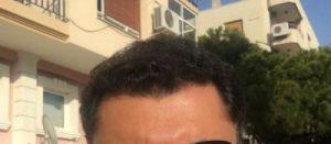 dr-koray-erdogan-hair-transplant (22)