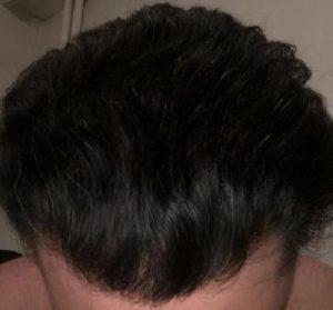 dr-koray-erdogan-hair-transplant (26)