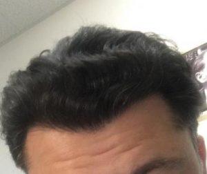dr-koray-erdogan-hair-transplant (28)
