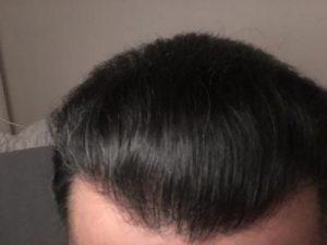 dr-koray-erdogan-hair-transplant (29)