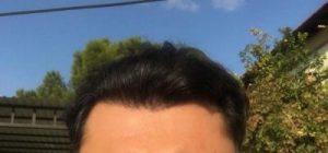 dr-koray-erdogan-hair-transplant (30)
