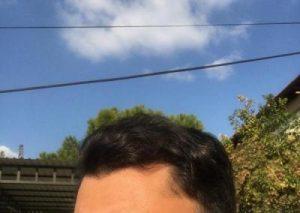 dr-koray-erdogan-hair-transplant (31)
