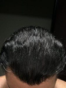 dr-koray-erdogan-hair-transplant (4)