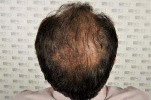 dr-koray-erdogan-hair-transplant (6)