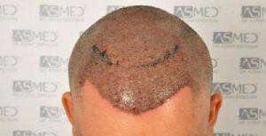 dr-koray-erdogan-hair-transplant (8)
