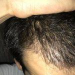 dr-kul-hair-transplant-result (10)