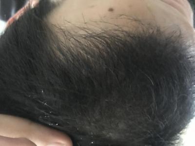 dr-kul-hair-transplant-result (11)