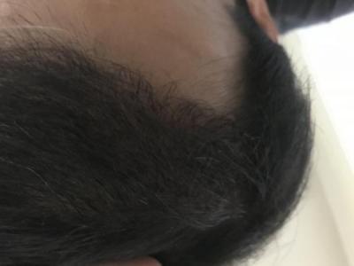 dr-kul-hair-transplant-result (12)