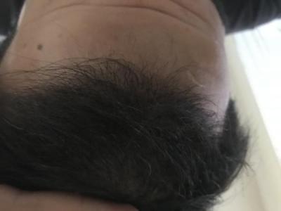 dr-kul-hair-transplant-result (13)