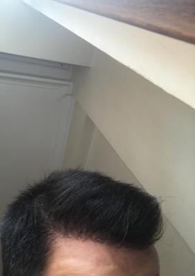 dr-kul-hair-transplant-result (15)