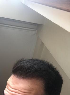 dr-kul-hair-transplant-result (16)