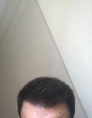 dr-kul-hair-transplant-result (17)
