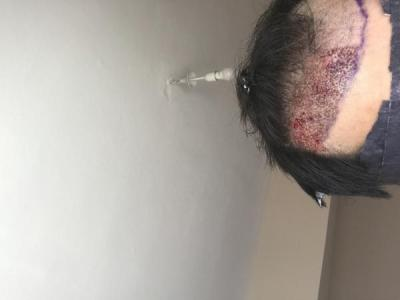 dr-kul-hair-transplant-result (19)