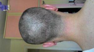 hair-transplant-line (10)