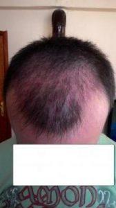 hair-transplant-line (11)