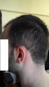 hair-transplant-line (13)