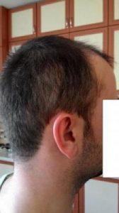 hair-transplant-line (14)