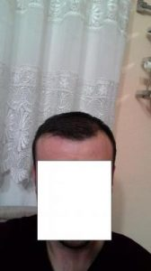 hair-transplant-line (15)