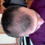 hair-transplant-line (16)