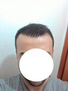 hair-transplant-line (17)