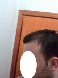 hair-transplant-line (19)