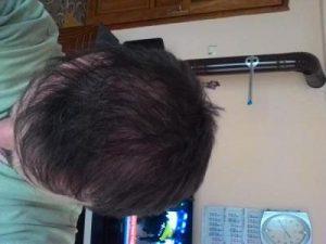 hair-transplant-line (20)
