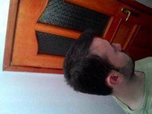 hair-transplant-line (24)