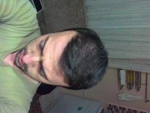 hair-transplant-line (3)